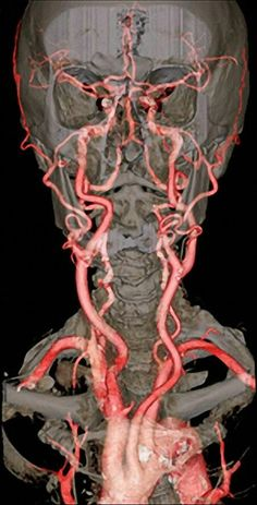 CT Scan With Contrast Showing The Vertebral And Internal Carotid Arteries. Anatomy Head, Human Anatomy, Internal Carotid Artery, Interventional Radiology, Medical Imaging, Circulatory System, Medical Illustration, Medical Science, Anatomy And Physiology