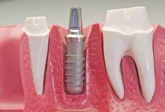 How to choose between a dental implant and a dental bridge as it explains in detail the implant advantages over the dental bridge disadvantages such as root canal treatment potential, continuous bone loss and ridge recession which leads to gum defect...
