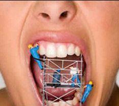 Sorriso em construção! ortopedia-funcional-maxilar