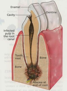 A dental abscess or tooth abscess or toothache usually occurs as a result of an untreated dental cavity or injury where an infection causes a periapical abscess at the tip of the root. Your dentists will treat this with either a root canal if you want to save the tooth or an extraction if you just want it out. Leaving a tooth abscess untreated can lead to life-threatening complications. https://www.pinterest.com/Davie_Dentist/