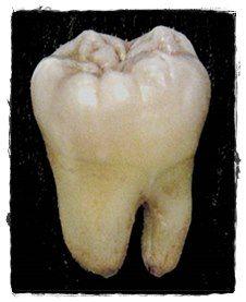 Amoxicillin Wisdom Tooth Infection Serenoa Repens O Avodart