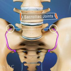 Examine the causes of sacroiliac joint dysfunction and the treatment options available for sufferers of hip pain and low back pain caused by the SI joint. www.etsy.com/ie/shop/HolisticMagnets