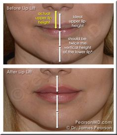 Lip Proportion - Upper Lip : Lower Lip The vertical height of the upper lip is ideally one half the height of the lower lip. Elongation of the cutaneous portion of the upper lip may lead to disproportion in this natural ratio, and may contribute to the appearance of a less aesthetically pleasing lip area. - LIP LIFT IS MY DREAM PROCEDURE </3