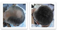 Widening part line? here is one easy solution Fuller Hair, Hair Looks, Thinning Hair, Hair Styles, Watch, Easy, Projects, Food, Essen