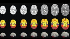 A group of researchers have demonstrated a novel map to measuring early brain development of infants from birth to three months.