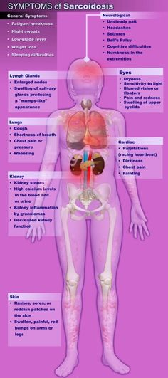 Symptoms of Sarcoidosis (infographic) #Sarcoidosis