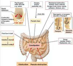 constipation pathophysiology - Google Search