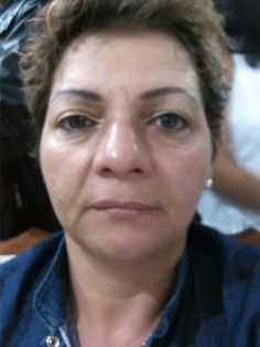 Con galvanic spa facial logramos reducir signos de envejecimiento de manera inmediata.  Y de manera natural.  INFO 3113041438 Cali,  Colombia