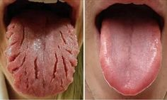 Be Aware Of THIS: These 9 Changes On Your Tongue Reveal Almost All Your Diseases
