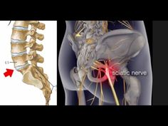 Managing Sciatic Nerve Pain | How to relieve pain from the sciatic nerve #Sciatica #Sciaticnerve - YouTube