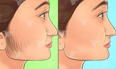 Many women experience unusual and unwanted hair growth on their faces. This irritating condition is called hirsutism and can occur due to different factors, including heredity, hormonal imbalance, and certain medications. In order to remove the unwanted f Facial Masks, Facial Hair, Beauty Secrets, Beauty Hacks, Beauty Tips, Putting On Makeup, Unwanted Hair, Unwanted Facial, Fake Eyelashes