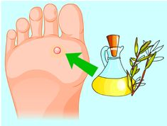 Herbs+: How To Remove Annoying Papillomas And Warts Once F. Fig Juice, Garlic Pills, Pure Castor Oil, Natural Exfoliant, Warts, Cotton Pads, Tea Tree Oil, Skin Problems, Natural Medicine