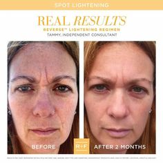See ya, sun damage and age spots! Thank you Reverse Regimen🙌🏻