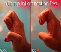 Crimping is the one climbing grip technique that isolates the most stress on your finger tendon/joints. Thumb lock crimping puts a lot of hanging weight solely on your finger joints. The proper crimp form is to open hand crimp the holds. The open hand crimp is when you are on a hold with the first four digits on, the thumb either adjacent to the digits or keeping it off the hold completely. Most importantly keeping the palm open. This prevents putting your weight on the finger tendons.