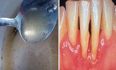 A rossz leheletnek számos oka lehet, ám leginkább a szuvas fogak, a fogkő, és a szájüregben elterjedő baktériumok okozzák. A bolti szájvíz pillanatnyilag megszünteti a problémát, de nem ajánlott hosszútávon használni, mivel nagyon sok vegyszert tartalmaz. Health And Beauty, Health And Wellness, Health Fitness, Natural Treatments, Natural Cures, Herbal Remedies, Home Remedies, Dental Health, Healthy Dinner Recipes