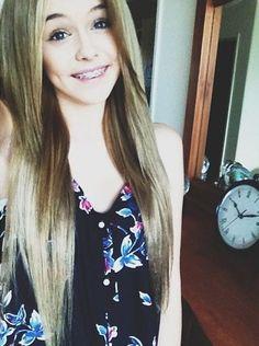{ Acacia Clark } she's so pretty ^_^ Acacia Clark, Acacia Brinley Tumblr, Red Hair Tumblr, Braces Girls, Bun With Curls, Poses, Tumblr Girls, Looking Gorgeous, Beautiful