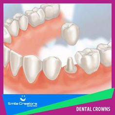 Preserve your damaged tooth with a dental crown!  حافظ على ضرسك المكسور عن طريق وضع تاج سيراميك  NEW !!! - 0% INTEREST Payment #Facility (An affordable way to pay for any treatment you want)  #Smile Creators Dental Clinic Boulevard Sin El Fil - Main Road  Dr. Elie Gemaa 71-680660