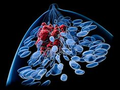 Virus-Fighting Enzyme Implicated in Breast Cancer | News | Bioscience Technology