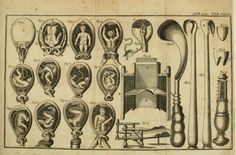 Positions of the fetus requiring intervention at birth, a reclining birthing chair, and instruments used to assist in delivery of the infant.  A General System of Surgery in three parts. Dr. Laurence Heister, 1745.