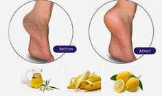 How to treat chapped feet permanently and get rid of cracked feet heels problems | Home Remedies