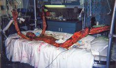 Body of Hisashi Ouchi