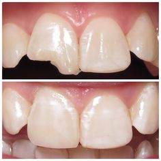 A chipped tooth can be rebuilt with Resin Bonding. We even matched the natural… Cosmetic Dentistry Procedures, Dental Procedures, Dental Composite, Dental Aesthetics, Dental Posters, Veneers Teeth, Teeth Dentist, Dental Art, Dental Health
