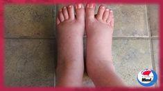 Remedios caseros y naturales para pies, tobillos y piernas hinchados