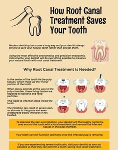 When infection penetrates the protective layers of the tooth and enter the inner portions, it can result in pain, swelling, and even a fever. Dental Health, Dental Care, Oral Health, Dental Hygienist, Happy Dental, Dental Kids, Dental Receptionist, Dental Fun Facts, Dental Assistant Study