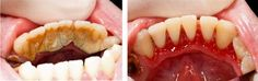 Before and after a dental cleaning. When was the last time you had your teeth cleaned? Dentaltown - Patient Education Ideas