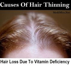 Deficiency Of What Causes Hair Loss