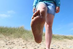 Ploché nohy sú častou diagnózou u deti i dospelých. Ide o deformáciu chodidla, konkrétne zníženie klenby nohy. Aj keď sa zdá, že nejde o závažný problém, nepodceňujte ho. Rokmi sa totiž môžu bolesti a deformita chodidla vystupňovať. Prečítajte si, ako postupovať, keď máte ploché nohy.