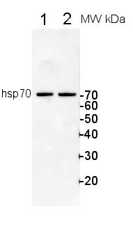 Western blot analysis of in rat and Human using a dilution of Heat Shock Protein, Thing 1, Rat, Plants, Flora, Plant, Planting, Computer Mouse