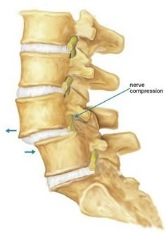 What does Subluxation of L5 mean?
