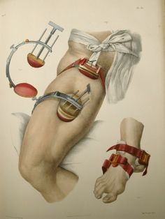 Traité complet d'anatomie de l'homme, 2nd ed. (1866–1871) by Bourgery, Bernard, and Jacob  The application of pressure to control blood loss is a natural reaction, though it was not until 1674 that Morell reported the use of a field tourniquet when he attached a cord to a wooden rod, and twisted it to achieve hemostasis. Here illustrated are the two most common methods of controlling blood loss in the 19th century