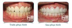Ưu điểm của răng sứ nacera như thế nào?