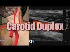 Carotid Duplex Exam - YouTube Subclavian Artery, Vertebral Artery, Carotid Artery, Circle Of Willis, Cardiac Cycle, Cervical Vertebrae, Blood Cells, Ultrasound, Us Images