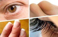 8 Amazing Beauty and Health Benefits of Castor Oil — Step To Health Beauty Care, Diy Beauty, Beauty Hacks, Castor Oil Benefits, Homemade Cosmetics, Homemade Skin Care, Body Treatments, Beauty Recipe, Natural Cosmetics