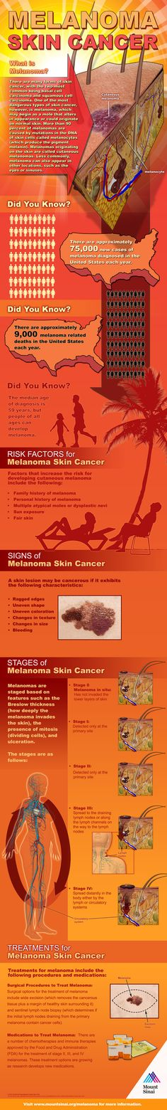 Learn more about the risk factors, signs, stages and advanced treatments for melanoma skin cancer. Visit our Skin Cancer Center at http://www.mountsinai.org/skincancer