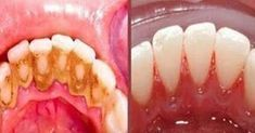 Video shows 3 best ways to remove teeth plaque or tartar at home without visiting a dentist for your dental cleaning. Remedies For Strong and White Teeth: ht. Health And Beauty Tips, Health Tips, Home Remedies, Natural Remedies, Teeth Whitening, Baking Soda, The Cure, Beauty Hacks, Health Fitness