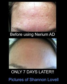 Start today to see results for yourself!  www.Kathleenjohnson.nerium.com