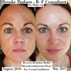 Brooke's future is looking BRIGHT and so is her SKIN!! ☀️ #Reversethedamage
