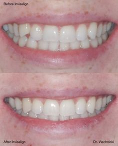 Before Invisalign, an upper front tooth was out of place. After Invisalign, the tooth is back in place and the smile looks so much better!