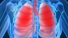 I have lung cancer. My medical care is excellent but the customer service stinks. #CMIEvo