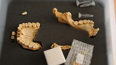 Neanderthal dental tartar reveals evidence of medicinal plants New Scientist, Human Anatomy And Physiology, Social Studies Resources, Archaeological Finds, Prehistory, Bronze Age, Medicinal Plants, Dental, Medicine