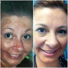 Before & After Skincare Photo's  Rodan+Fields Reverse Regimen to get rid of sun damage or melanoma!   Business address: www.britneyharper.myrandf.biz or .com for products www.facebook.com/rodanfieldsteamharper
