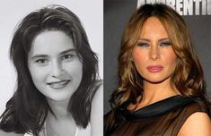 Plastic Surgery Gone Wrong, Celebs Without Makeup, Trump Hair, Hair Color Caramel, Celebrity Plastic Surgery, Celebrities Before And After, Ugly Faces, Aging Gracefully, Beauty Hacks