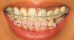 Lig colours (colors) - Page 27 - Metal Mouth Message Board Types Of Braces, Braces Tips, Kids Braces, Dental Braces, Teeth Braces, Cute Braces Colors, Lingual Braces, Ceramic Braces, Getting Braces
