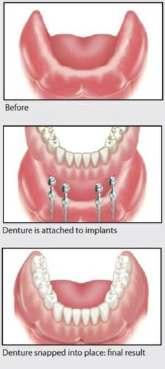 Before: An edentulous lower mandibular ridge missing all the teeth.  After: Four implants are placed so a lower mandibular denture can be snapped firmly into place for a final result which denture patients love.  Dentaltown - Patient Education Ideas
