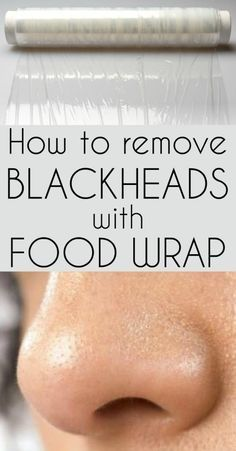 Learn how to remove blackheads with plastic food wrap.