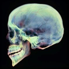 A colored X-ray of a sagittal section through a human skull from a lateral view.  The skull has been sliced in half down the centre, revealing details of the internal structures. These include the delicate bones and spaces of the paranasal sinuses (around the nose and eyes, centre left), as well as the fused bones of the cranium that encase and protect the brain.  The nasal, cheek and upper jaw bones are shown fused to the cranium to form the facial skeleton (left). The lower jaw bone…